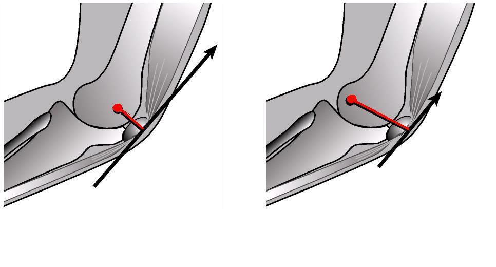 Надколенно-бедренного сустава практика воздействие на суставы болевые приемы